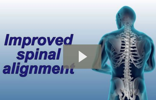 Scoliosis Pain and Chiropractic